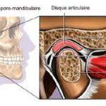 Mâchoire ménisque ostéopathie